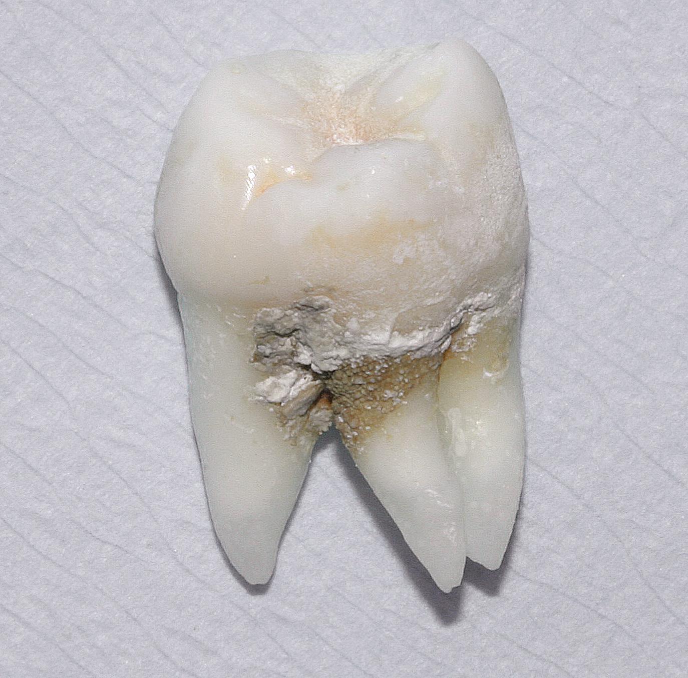 Grau karies zahn Schwarze Zähne