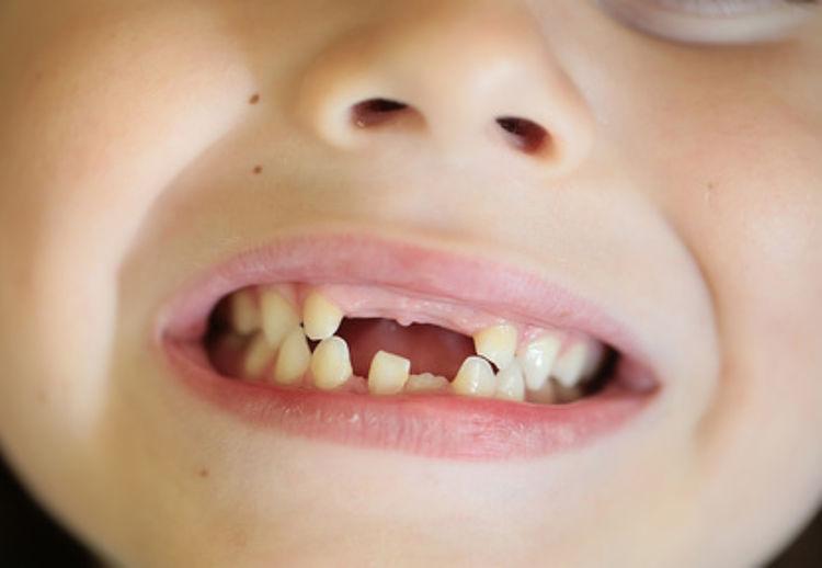 Tun was schlechte zähne Schlechte Zähne: